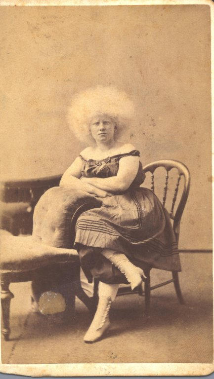 woman seated sepia photograph disability history america