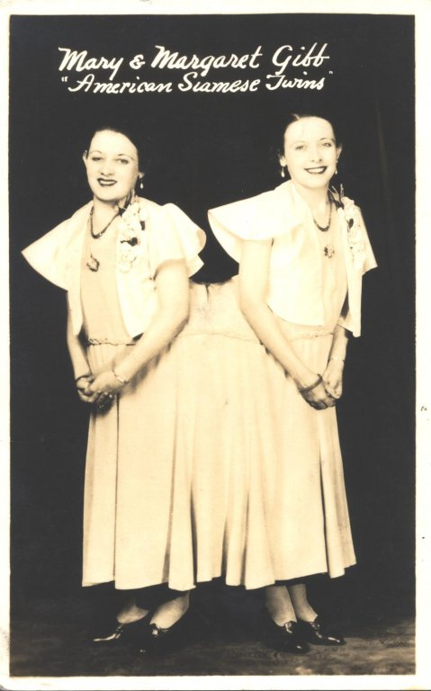 mary and margeret gibb american siamese twins disability history america