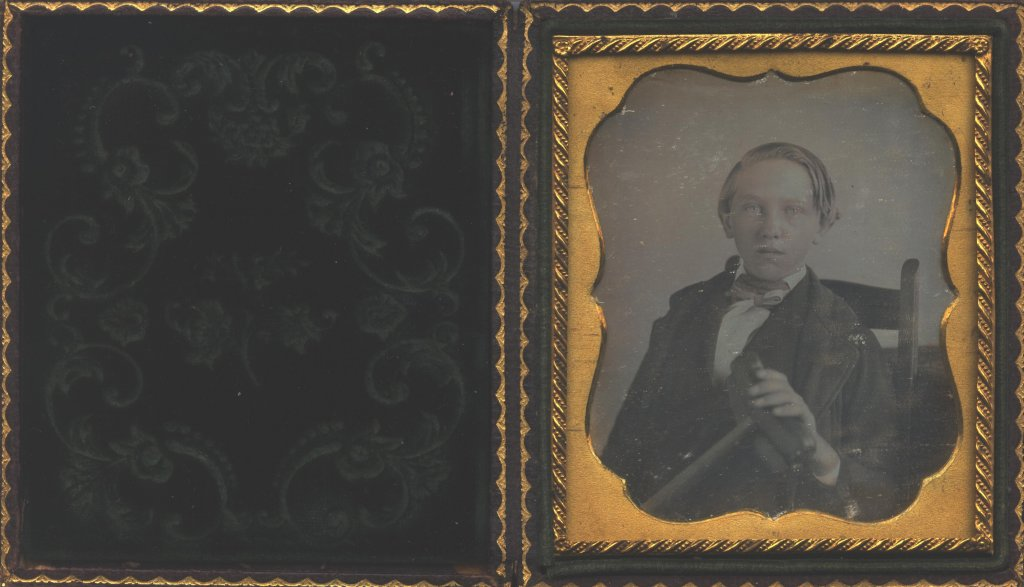 young boy black white portrait in album color photograph disability history america