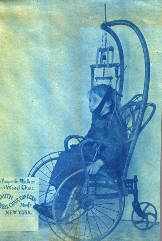 young girl in wheelchair head supported color disability history america