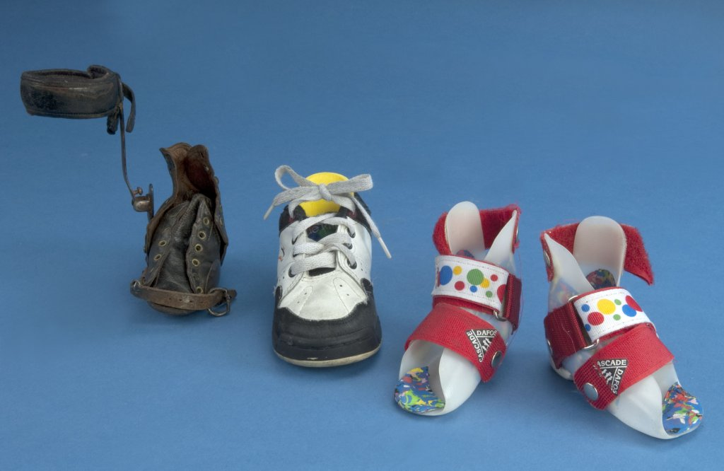 Two sets of shoes made for children whose foot twists inward.