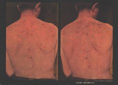 picture of man with back acne disability history america