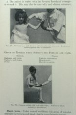 Treatment demonstration from page in book Treatment demonstration